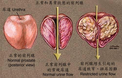 前列腺炎会导致阳痿早泄 记住4种症状 并做好防治