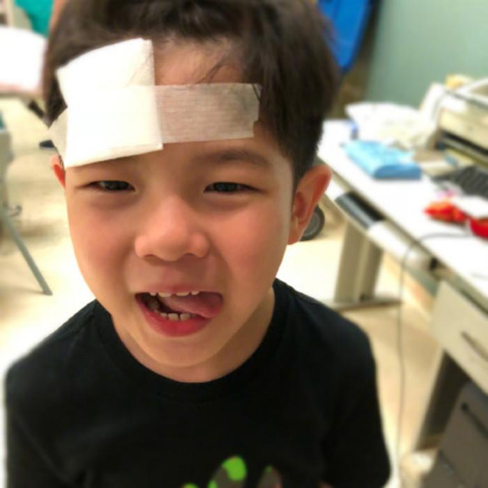 安吉玩回旋镖受伤,处理伤口一声没吭很坚强