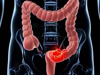 肠癌有哪些症状?大便前后经常出现这4个情况
